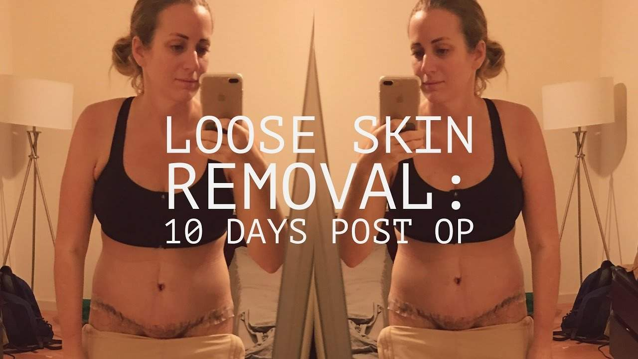 Loose Skin Removal Surgery Update Keto Karma